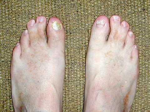 world wide webbed toes, Skeleton